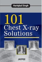 101 Chest Xray Solutions